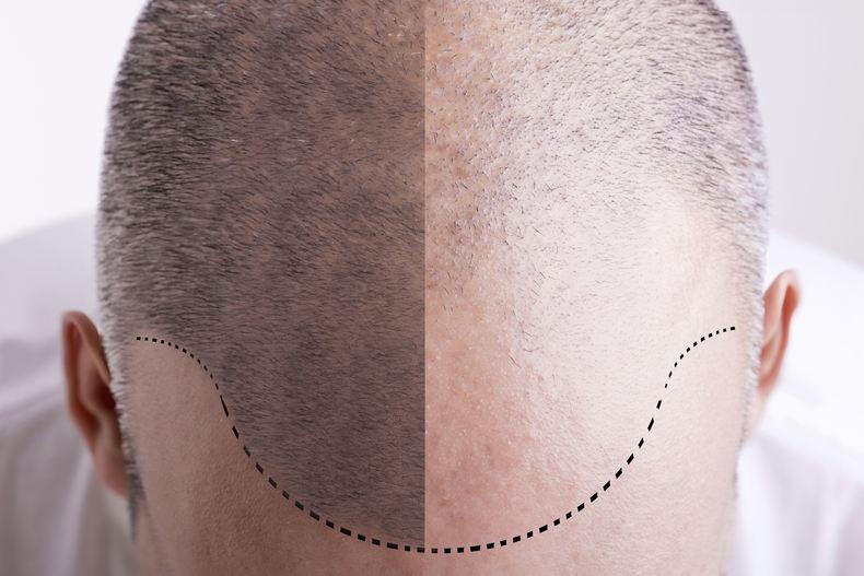 Hårtransplantasjon generisk bilde