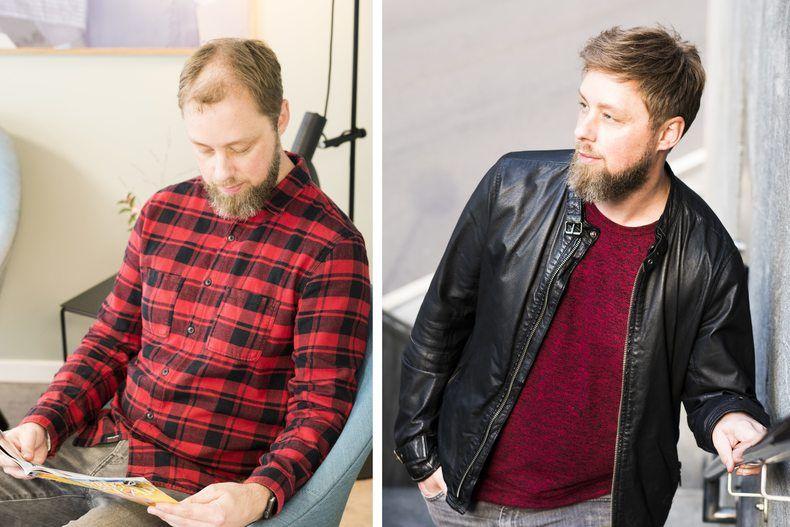 Ung mann, modell, Terje før og etter behandling for sitt hårtap.