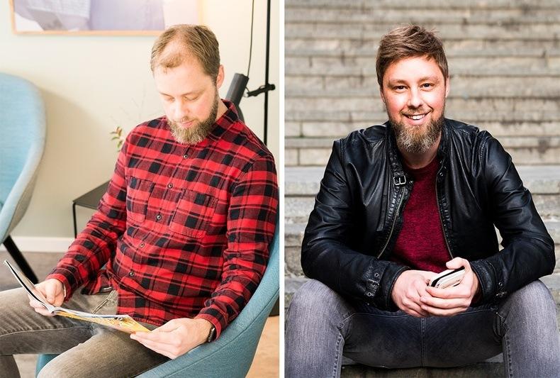 Mann i rød skjorte før og etter hårbehandling