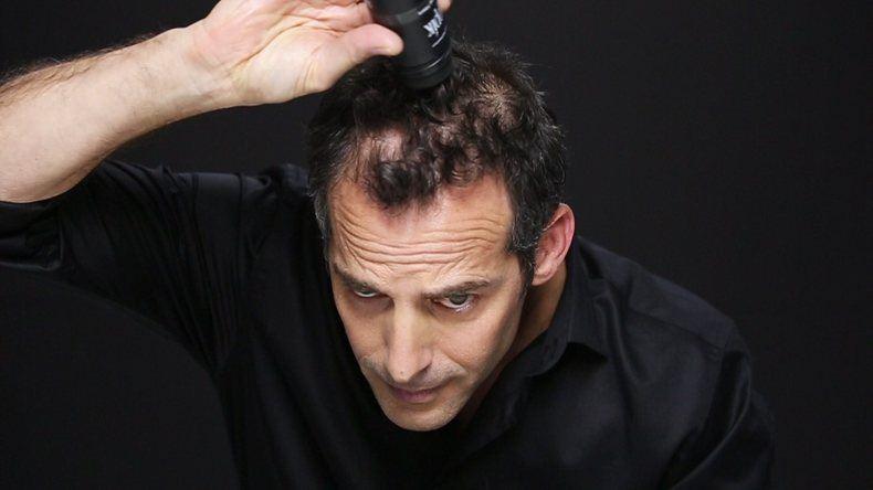 Mann som skjuler hårtapet sitt med Toppik